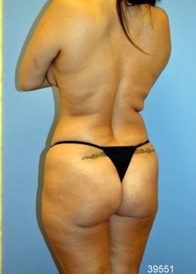 Brazilian Butt Lift Gallery - Patient 5883427 - Image 1