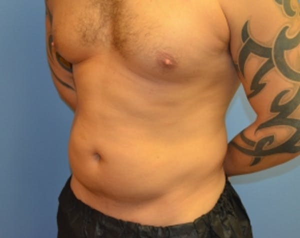 Abdominal Etching Gallery - Patient 5883428 - Image 1