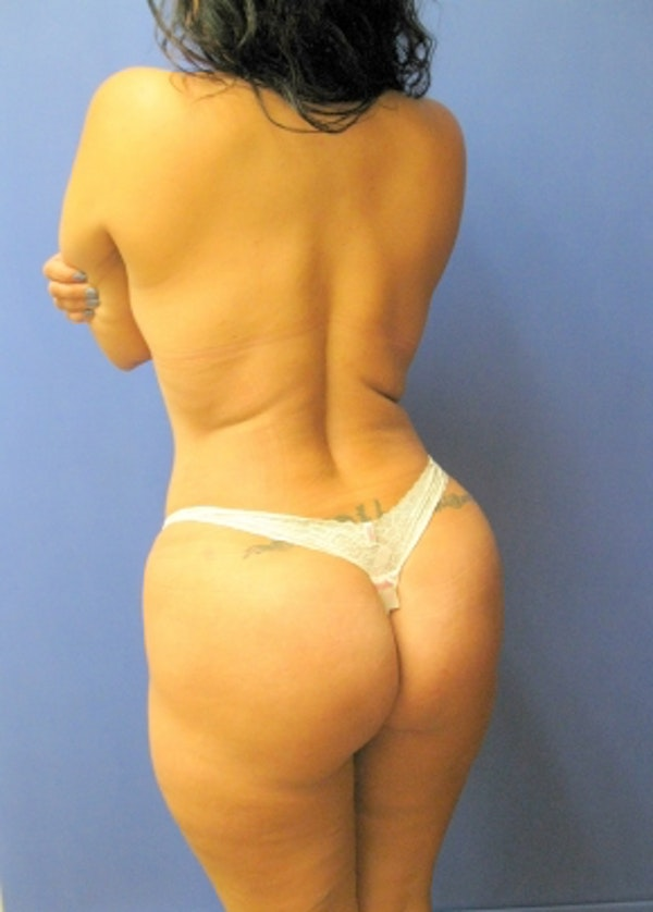 Brazilian Butt Lift Gallery - Patient 5883427 - Image 2