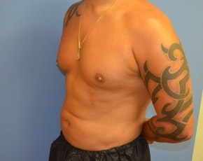 Abdominal Etching Gallery - Patient 5883428 - Image 2