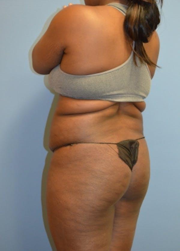 Brazilian Butt Lift Gallery - Patient 5883430 - Image 1