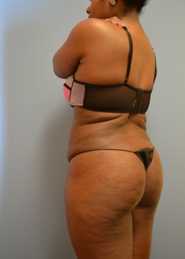 Brazilian Butt Lift Gallery - Patient 5883430 - Image 2