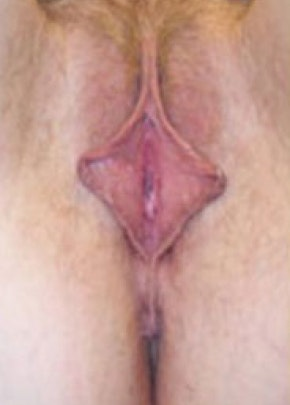 Female Enhancement Gallery - Patient 5883431 - Image 1