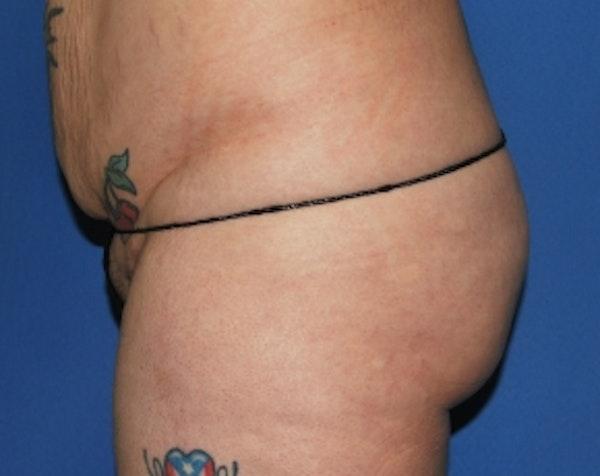 Brazilian Butt Lift Gallery - Patient 5883437 - Image 3
