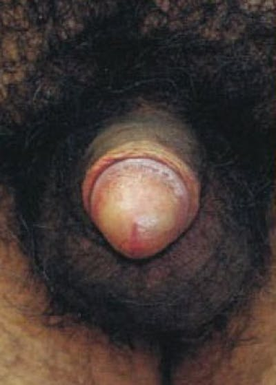Male Enhancement Gallery - Patient 5883434 - Image 1