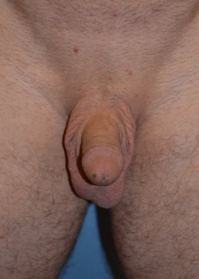 Male Enhancement Gallery - Patient 5883438 - Image 1