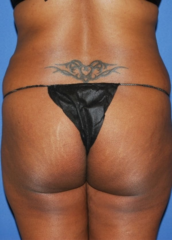 Brazilian Butt Lift Gallery - Patient 5883441 - Image 1