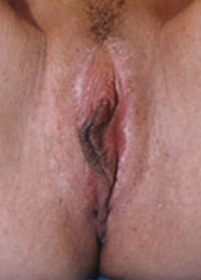 Female Enhancement Gallery - Patient 5883444 - Image 2