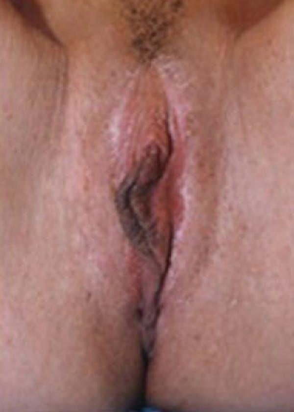 Female Enhancement Gallery - Patient 5883444 - Image 2