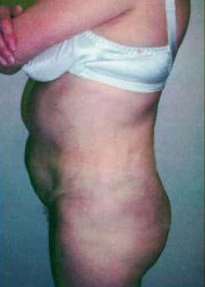 Brazilian Butt Lift Gallery - Patient 5883445 - Image 14
