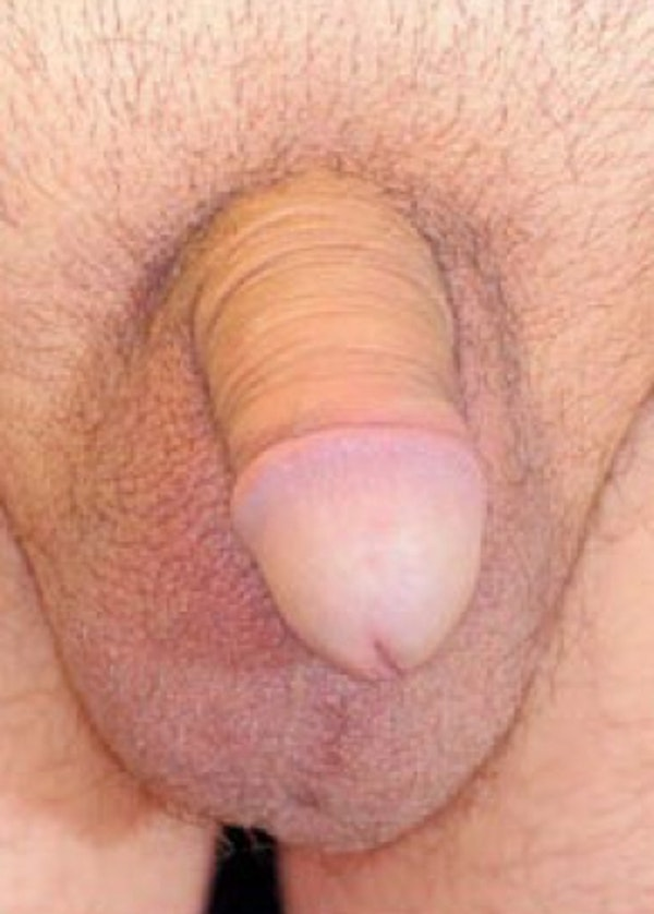 Male Enhancement Gallery - Patient 5883448 - Image 1
