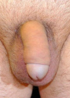 Male Enhancement Gallery - Patient 5883448 - Image 2