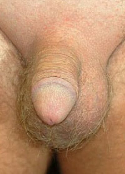 Male Enhancement Gallery - Patient 5883450 - Image 1