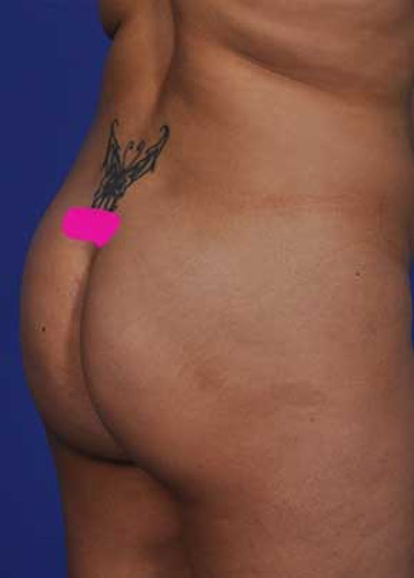 Brazilian Butt Lift Gallery - Patient 5883452 - Image 1