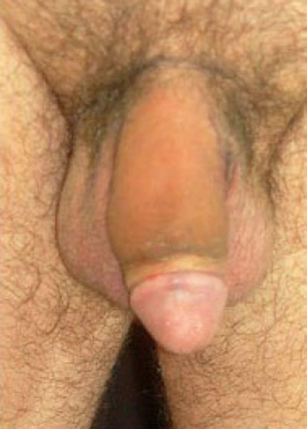 Male Enhancement Gallery - Patient 5883453 - Image 2