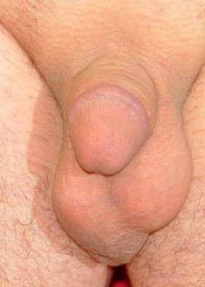 Male Enhancement Gallery - Patient 5883455 - Image 1