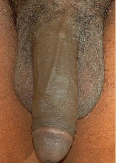 Male Enhancement Gallery - Patient 5883459 - Image 1