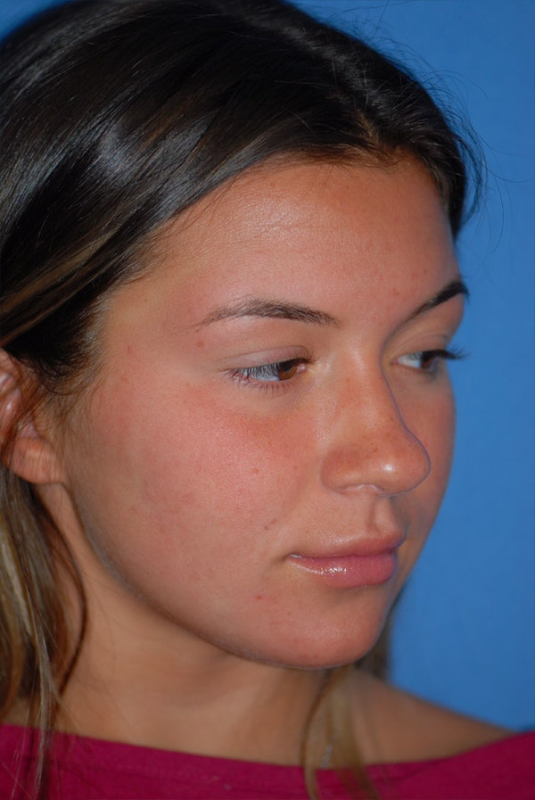 Rhinoplasty Gallery - Patient 5883724 - Image 3