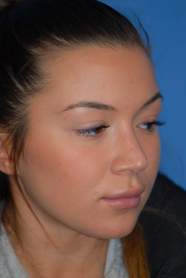 Rhinoplasty Gallery - Patient 5883724 - Image 4