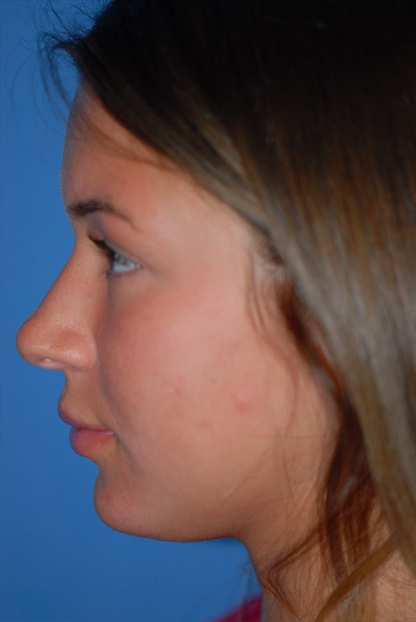 Rhinoplasty Gallery - Patient 5883724 - Image 5