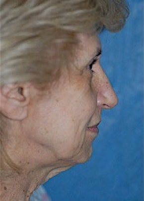 Facelift and Mini Facelift Gallery - Patient 5883726 - Image 1