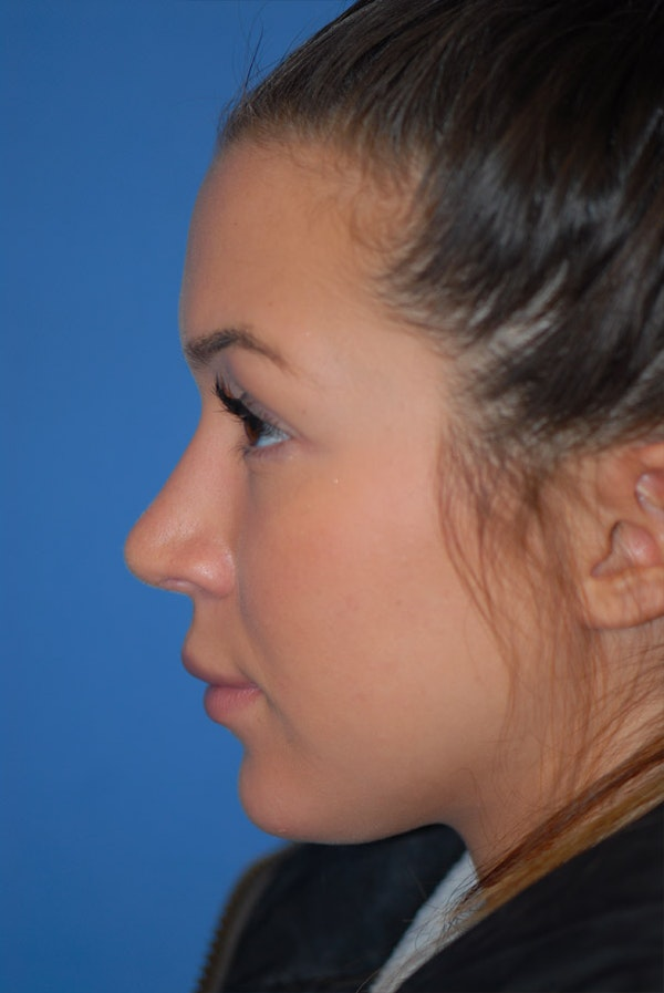 Rhinoplasty Gallery - Patient 5883724 - Image 6