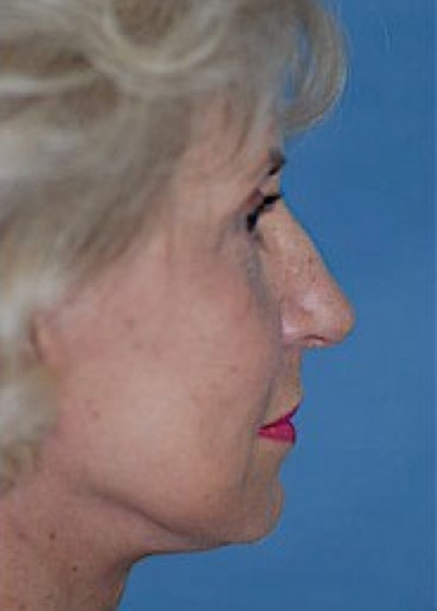 Facelift and Mini Facelift Gallery - Patient 5883726 - Image 2