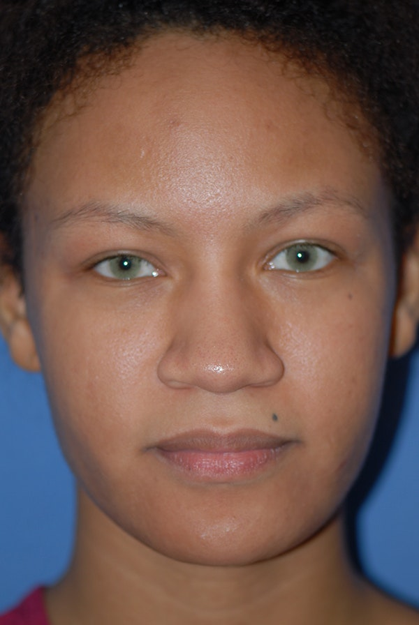 Rhinoplasty Gallery - Patient 5883737 - Image 1