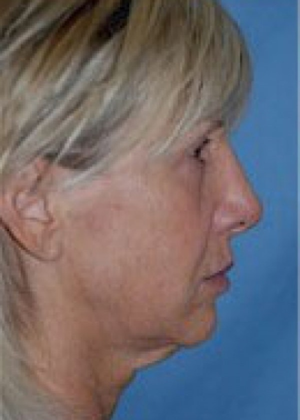 Facelift and Mini Facelift Gallery - Patient 5883732 - Image 1
