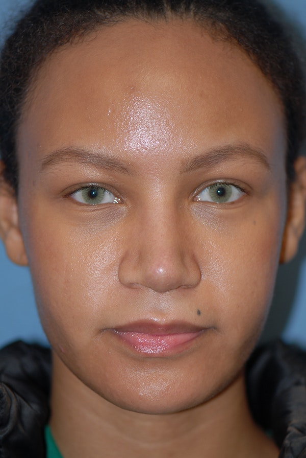 Rhinoplasty Gallery - Patient 5883737 - Image 2