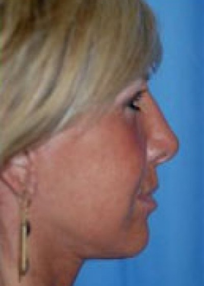 Facelift and Mini Facelift Gallery - Patient 5883732 - Image 2