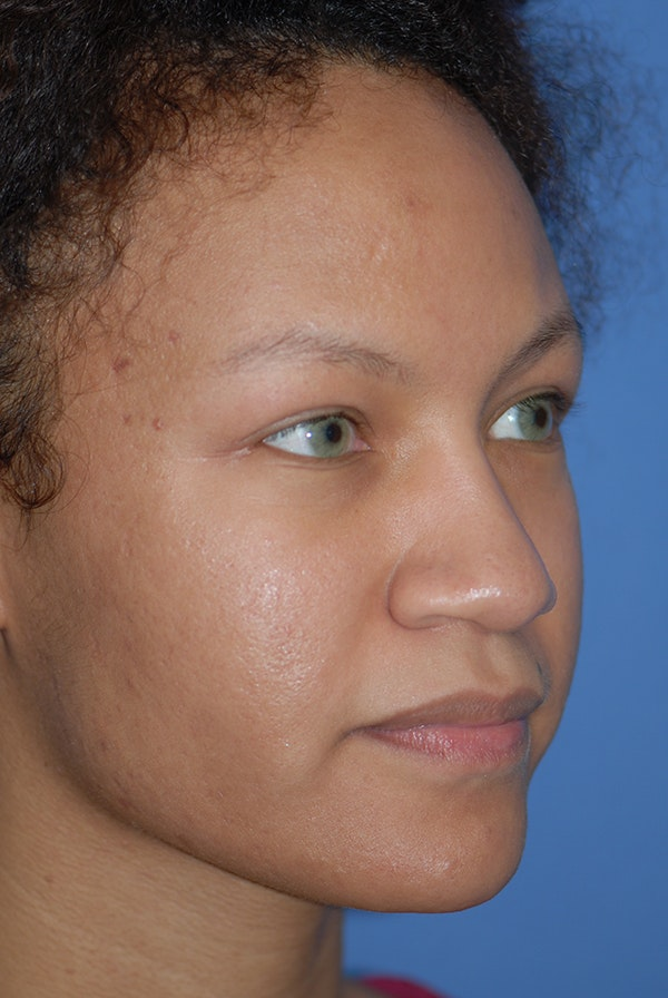 Rhinoplasty Gallery - Patient 5883737 - Image 3