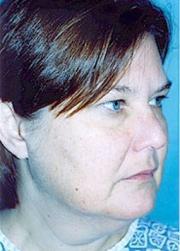 Facelift and Mini Facelift Gallery - Patient 5883733 - Image 1