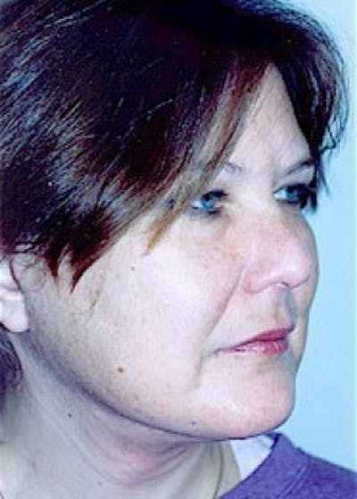 Facelift and Mini Facelift Gallery - Patient 5883733 - Image 2