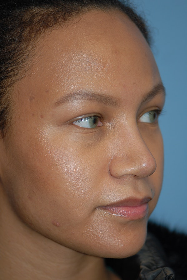 Rhinoplasty Gallery - Patient 5883737 - Image 4