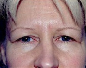 Eyelid Surgery Browlift Gallery - Patient 5883734 - Image 1