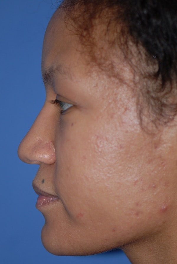 Rhinoplasty Gallery - Patient 5883737 - Image 5