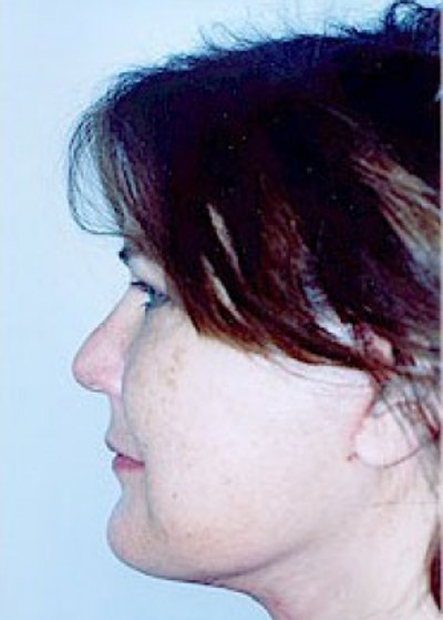 Facelift and Mini Facelift Gallery - Patient 5883733 - Image 4