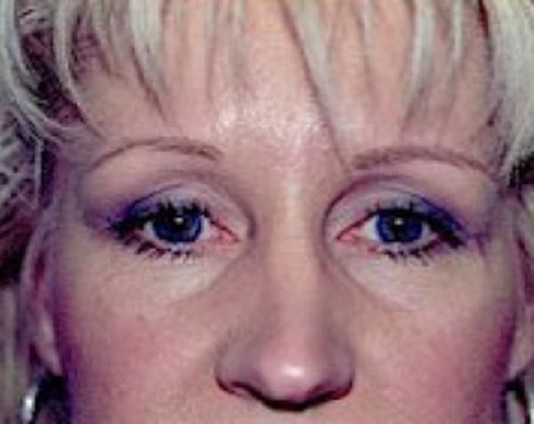 Eyelid Surgery Browlift Gallery - Patient 5883734 - Image 2