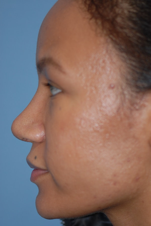 Rhinoplasty Gallery - Patient 5883737 - Image 6