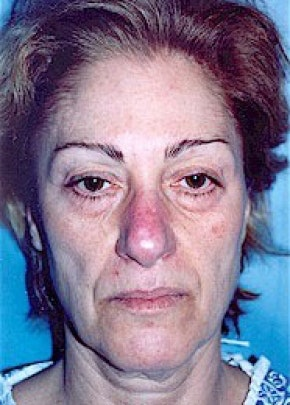 Facelift and Mini Facelift Gallery - Patient 5883736 - Image 1