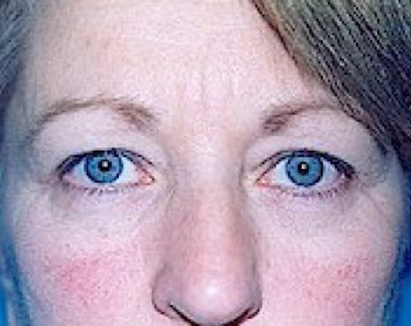 Eyelid Surgery Browlift Gallery - Patient 5883735 - Image 1