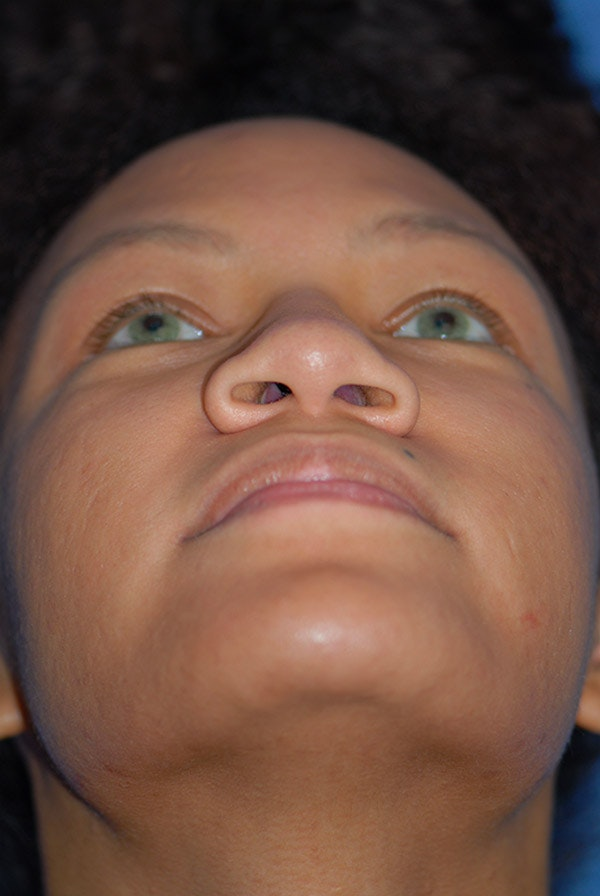 Rhinoplasty Gallery - Patient 5883737 - Image 7