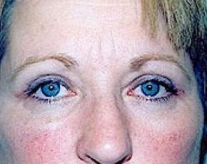 Eyelid Surgery Browlift Gallery - Patient 5883735 - Image 2