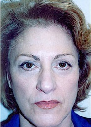 Facelift and Mini Facelift Gallery - Patient 5883736 - Image 2