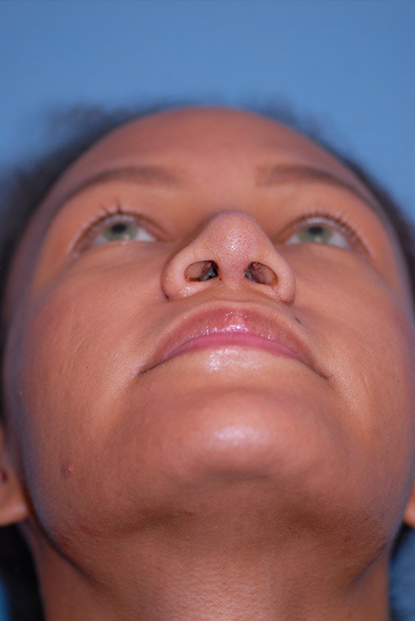 Rhinoplasty Gallery - Patient 5883737 - Image 8