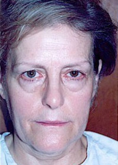 Eyelid Surgery Browlift Gallery - Patient 5883738 - Image 1