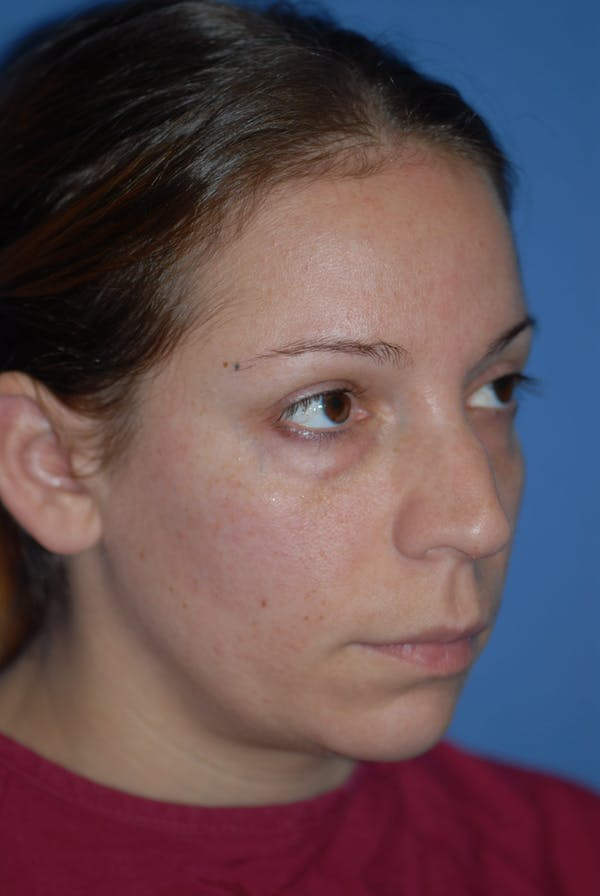 Rhinoplasty Gallery - Patient 5883741 - Image 1