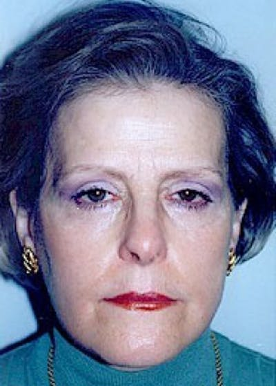 Eyelid Surgery Browlift Gallery - Patient 5883738 - Image 3