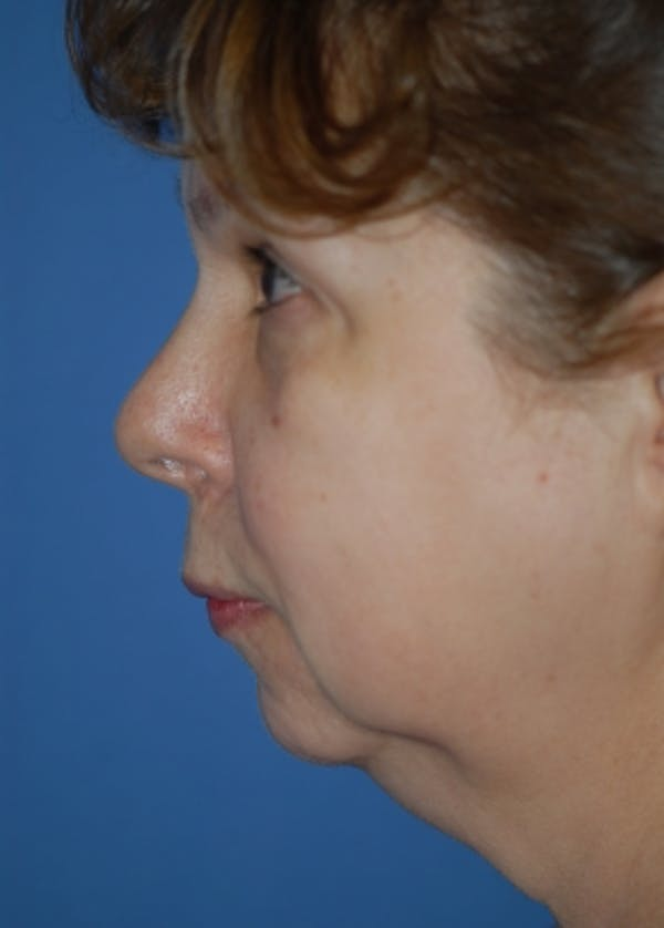 Facelift and Mini Facelift Gallery - Patient 5883739 - Image 3